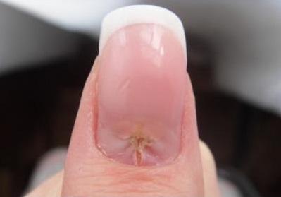 Как лечить воспаление возле ногтя