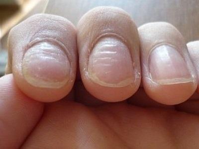 До и после ногти после экзодерила