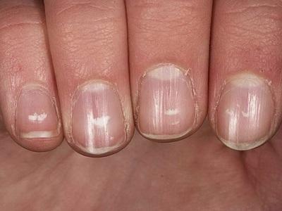Поперечные бороздки на ногтях причины