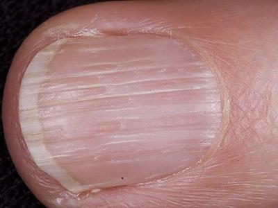Псориатический артрит против ревматоидного артрита изучите различия