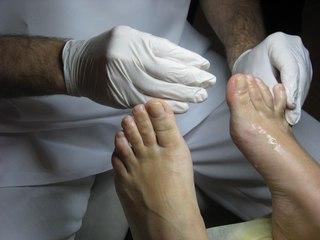 Лечение ониходистрофии