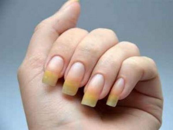 Изменение цвета ногтя - один из признаков ониходистрофии