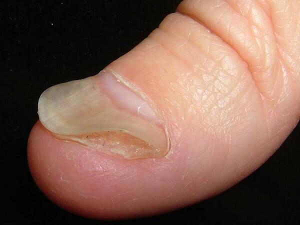 Онихолизис - один из видов ониходистрофии