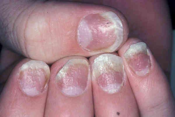 Ониходистрофия ногтей на руках: симптомы