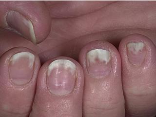 Онихолизис на ногтях руки