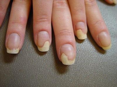 Порча грибок ногтей