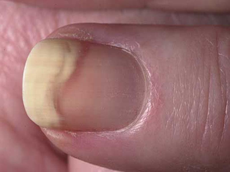 Чем вылечить грибок на ногах у беременных