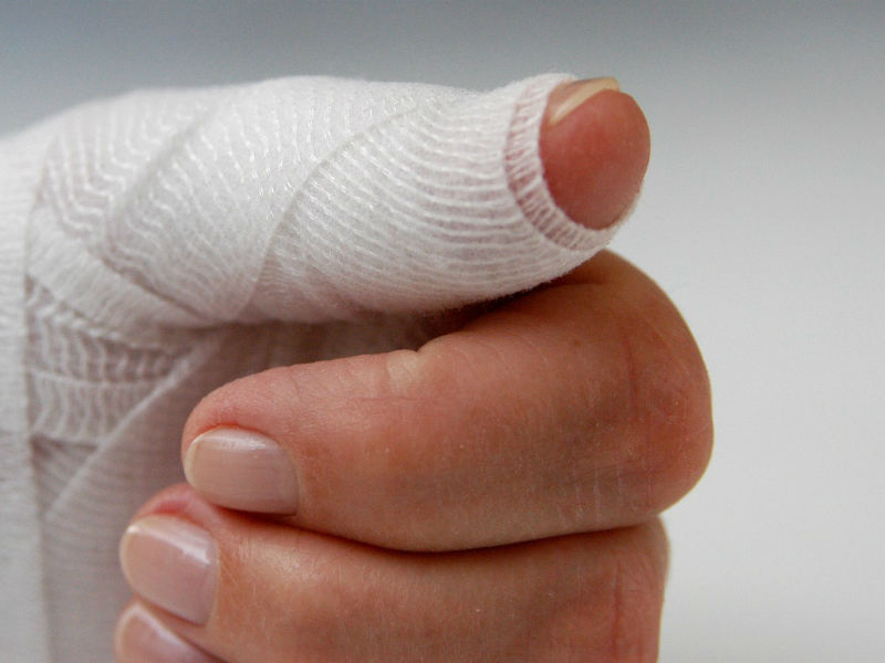 Между ногтем и пальцем отошла кожа