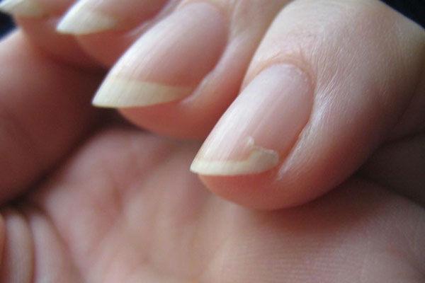 Почему на руках ногти отходят от