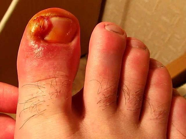 Что хорошо помогает от грибка на ногах