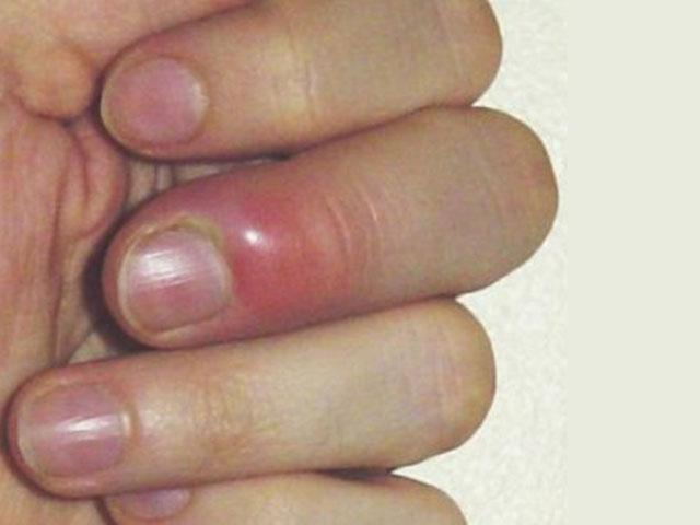 Как лечить сустав на пальце, гнойная рана дистрофические изменения костей плечевого сустава