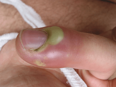 У какого врача лечить ногти