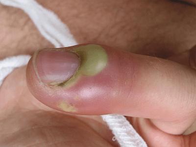 Палец руки без ногтя 3