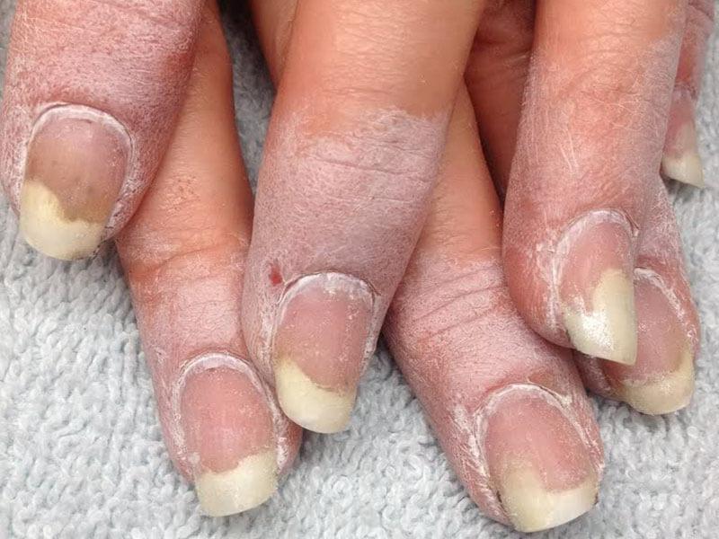 Екатеринбург лазерное лечение вросшего ногтя