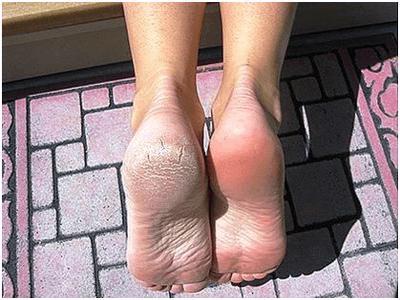 Результаты после применения носочков для педикюра