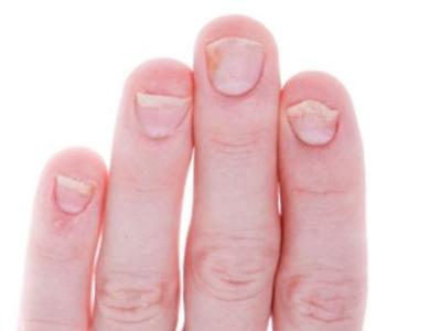 Палец руки без ногтя 61