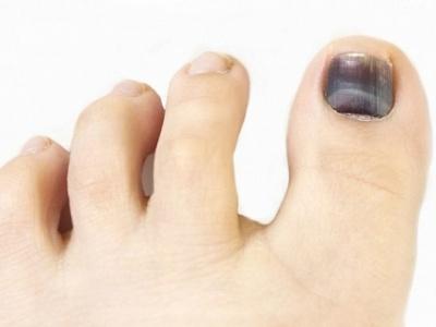 Черный ноготь на пальце ноги