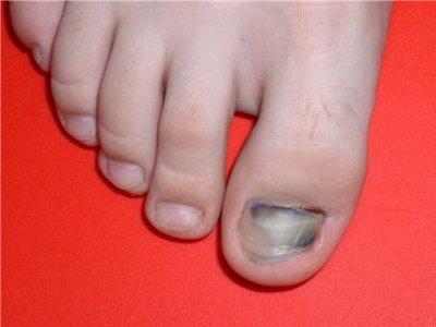 5 лет не могу вылечить грибок ногтей
