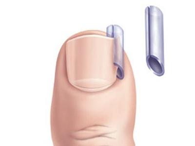 Ноготь на большом пальце ноги болит