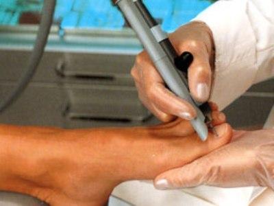 Лечение вросшего ногтя лазером, его коррекция