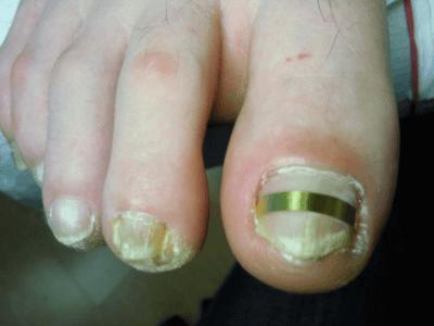 Пластины для вросших ногтей схожи с брекетами в стоматологии