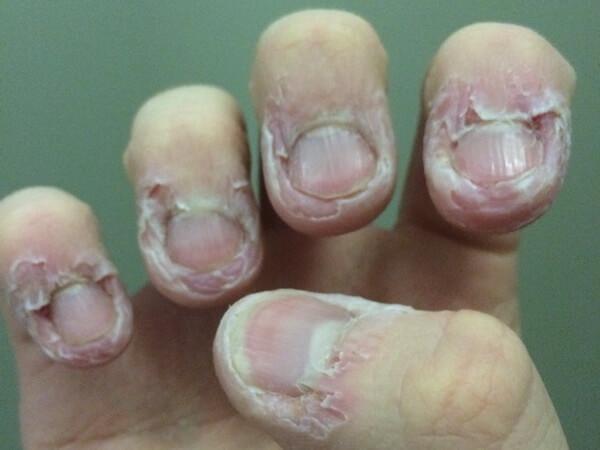 Заусенцы на пальцах рук: причины, как убрать, лечение частых 92