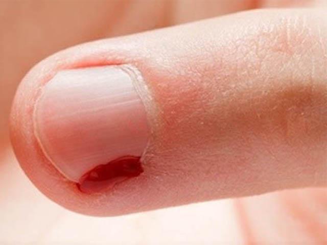 опух палец у ребенка