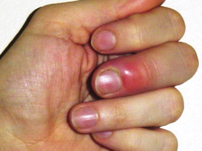Как выглядит нарыв на пальце